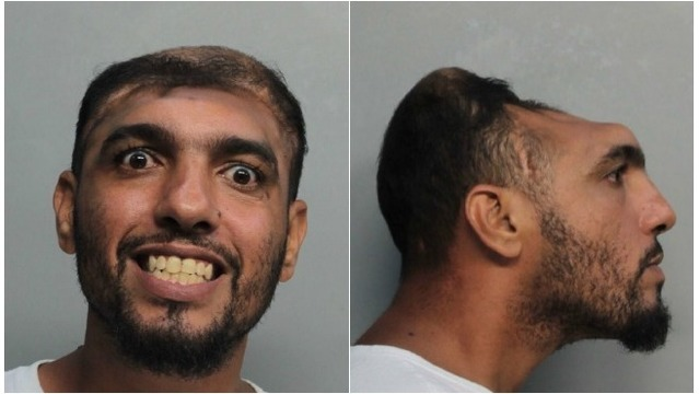 Man with deformed skull charged with arson, attempted murder