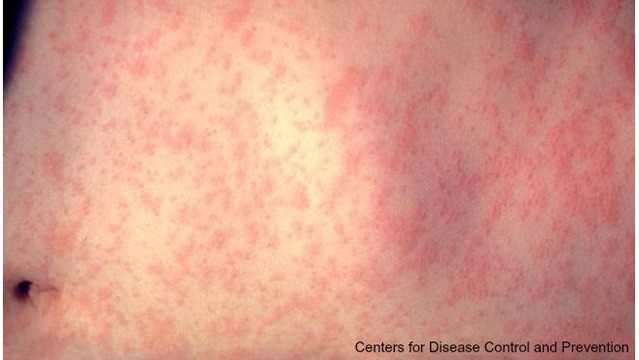 Officials Confirm 4 More Measles Falls in Detroit
