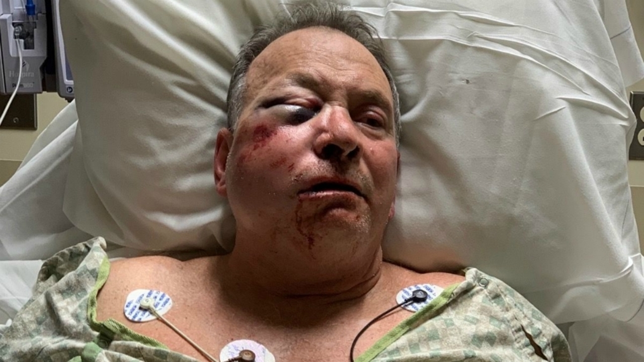 Report: Family blames road rage for assault